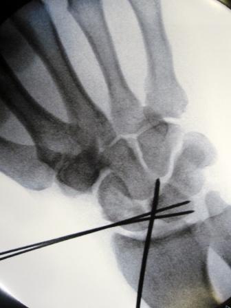 Tucker's pin-up wrist