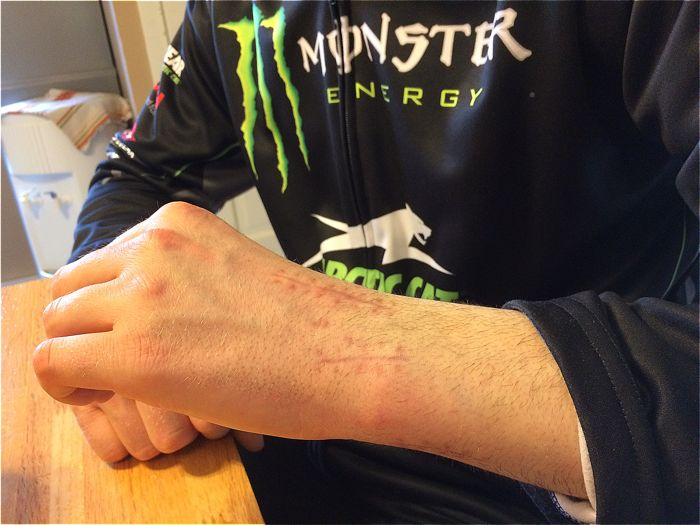 Tucker Hibbert's repaired wrist. Photo by ArcticInsider.com